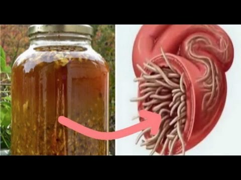 Cure All Infections And Kill All Parasites With This DIY Antibiotic - YouTube