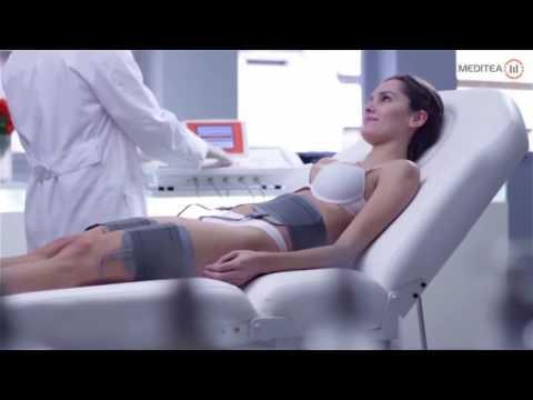 TERMOCEL STIM Equipo de Termoterapia y Electroestimulación