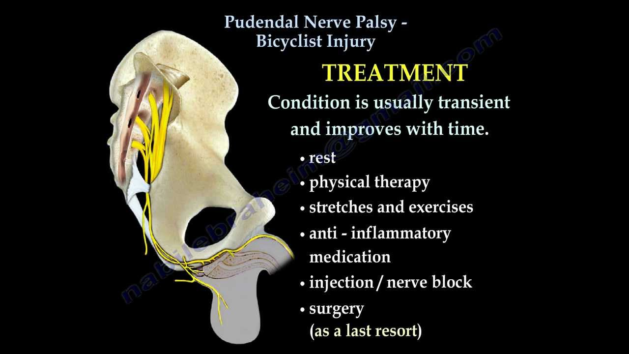 Pudendal Neuralgia - Physiopedia