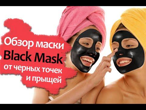 Черные точки на лице (комедоны) — причины и избавление в