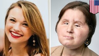 Woman youngest face transplant recipient in U.S. at 21 - TomoNews