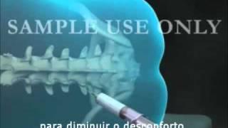 Dor após tendo epidural costas nas