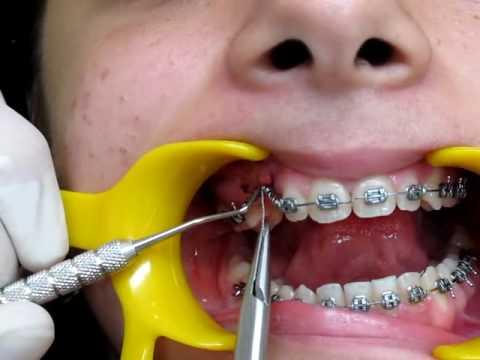 alignement des dents activation d