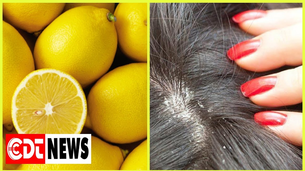 How to use lemon for dandruff – Remove dandruff with lemon