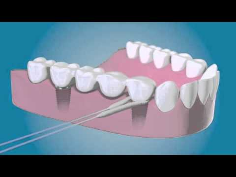 TePe Bridge & Implant Floss - Diş İpi