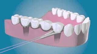 TePe Bridge & Implant Floss - Diş İpi