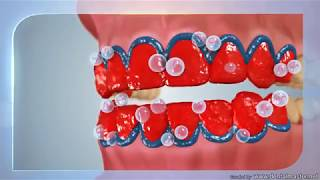 הדגמה והסבר על הלבנת שיניים של איי נוביס מדיקל