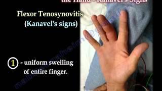 Flexor Tenosynovitis Of The Hand Kanavel's Signs - Everything You Need To Know - Dr. Nabil Ebraheim