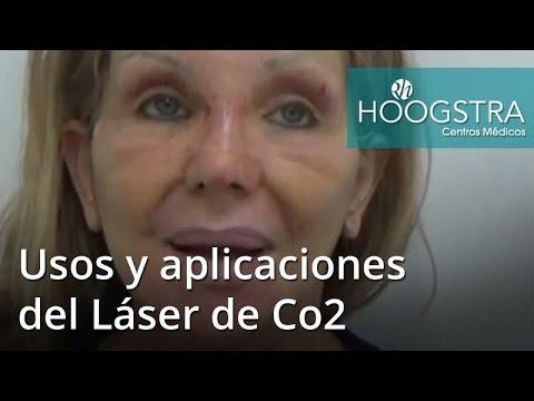 Usos y aplicaciones del Láser de Co2 - 4º Simposio (18081)