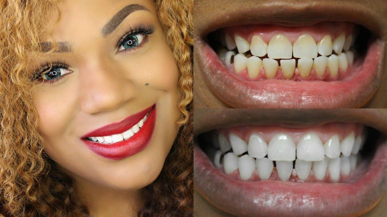 At Home Teeth Whitening Kit Smile Brilliant Teeth
