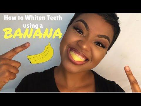 Banana Skin For Teeth