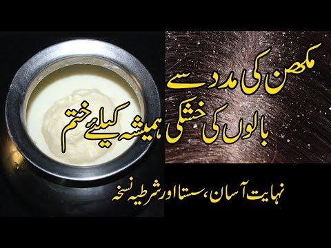Hair Dandruff Treatment In Urdu | Hindi || Hair Dandruff Solution || Sar Ki Khushki Ka Ilaj In Urdu