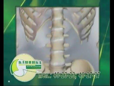 Остеопороз - Симптомы и лечение народными средствами в