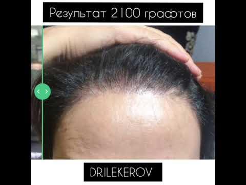 Результаты пересадки волос методом FUE 4 | До и После