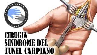 Sindrome del tunel carpiano, cirugia u operacion  /  Fisioterapia a tu alcance