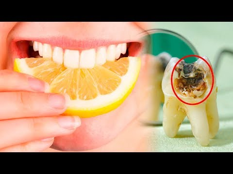 The 7 Worst Foods for Your Teeth