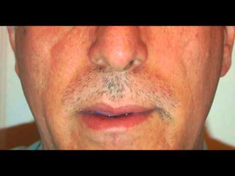 Time Lapse Moustache Growth
