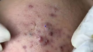 How To Remove Blackheads Easy | Acne Treatment