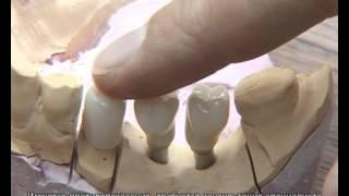 Зубные коронки на основе диоксида циркония(Видео стоматологической клиники Дента-Стиль., 2012-06-25T20:51:02.000Z)
