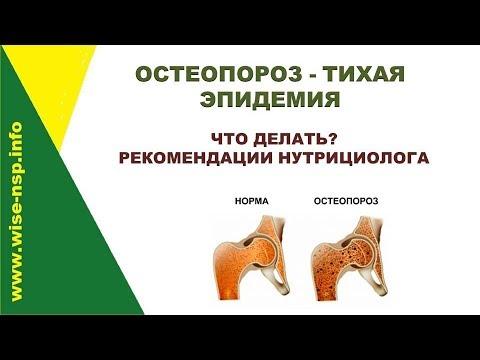 Остеопороз - тихая эпидемия 21 века: признаки, профилактика, лечение остеопороза