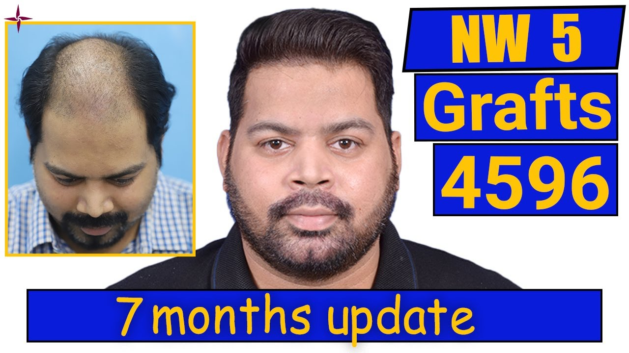 Hair Transplant 4596 grafts, NW 5: Update of 7 months @Eugenix Hair Sciences by Drs Sethi & Bansal