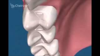 Как происходит протезирование имплантами  Ортопедическая стоматология(В этом видео по стоматологии мы вам расскажем как происходит протезирование имплантами. Это очень важно..., 2016-04-29T19:06:27.000Z)