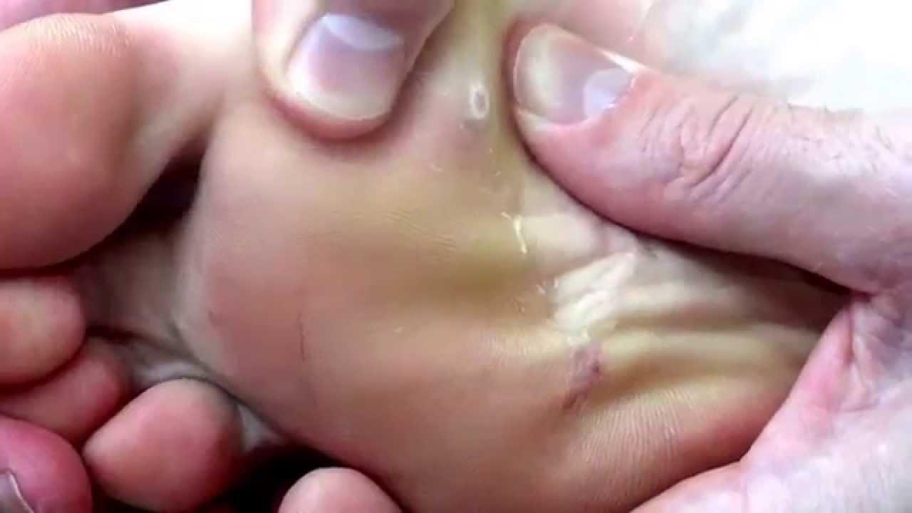 How to Remove Verrucas