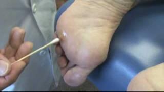 Treatment for Kaal Aani (Foot Corn) | Naattu Maruthuvam – Sun tv Show