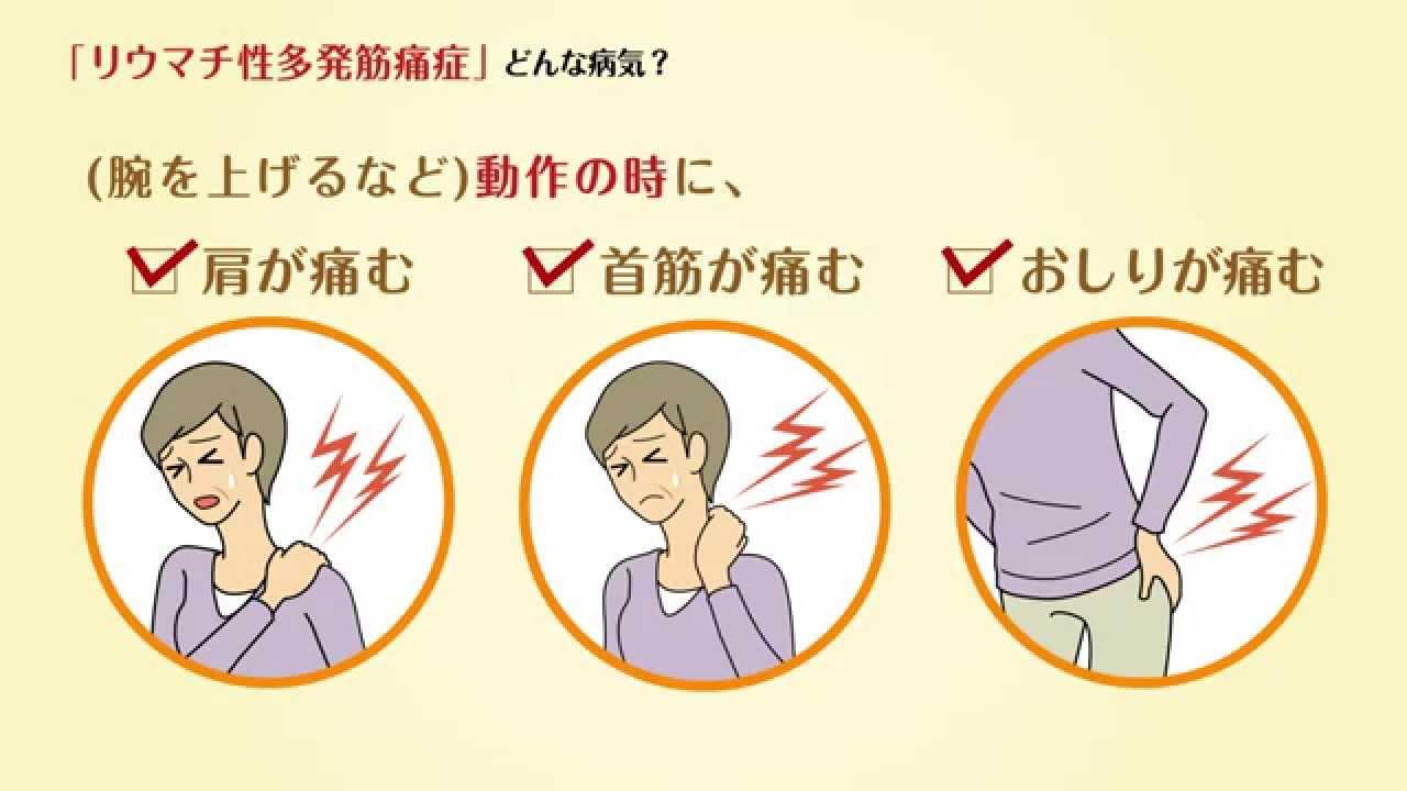 「リウマチ性多発筋痛症、診断」の画像検索結果