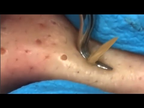 Blackhead Squeezed Pimple Removal