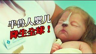 嬰兒頭頂長出鹿茸?神秘病毒爆發!人類竟然長出動物器官? 『鹿角男孩』| 小俠說電影