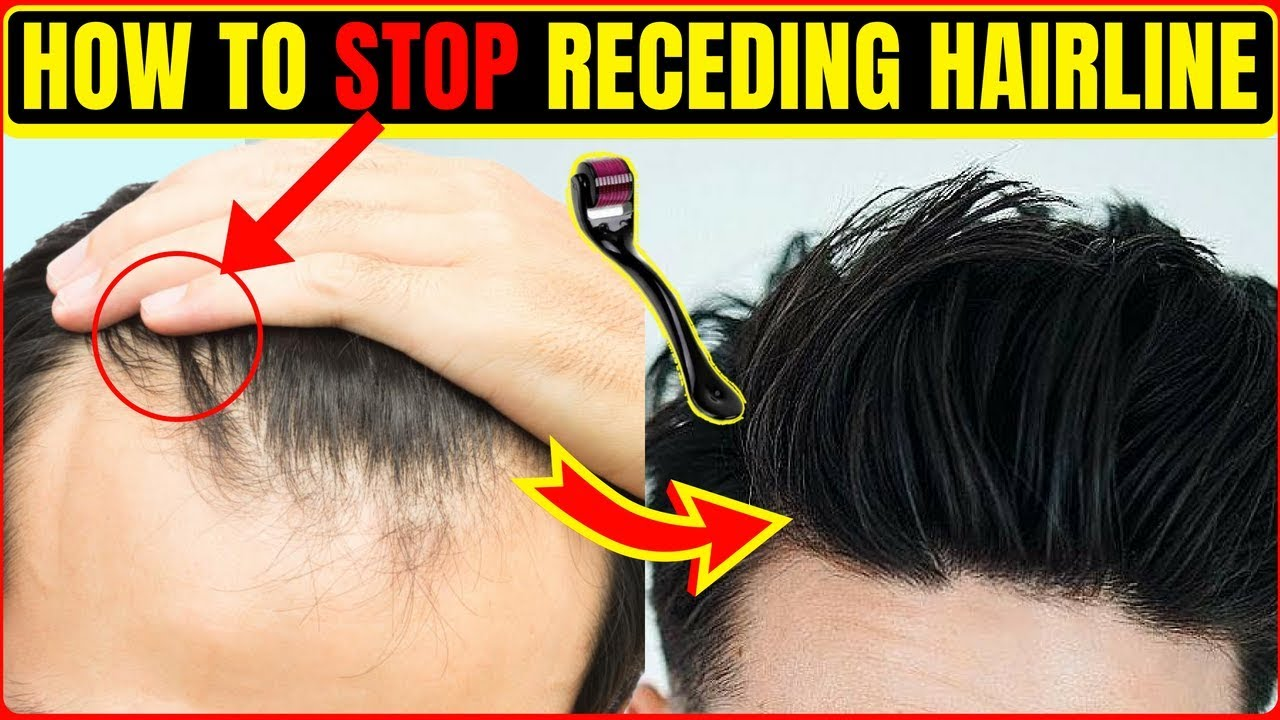 How To Stop Hair Loss Receding Hairline Receding Hair Line