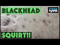 Back Blackheads Squirt onto my FACE!!