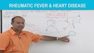 Rheumatic Fever & Heart Disease – Pathology