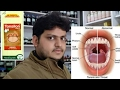 Homeopathic medicine for acute tonsillitis and chronic tonsillitis explain!??