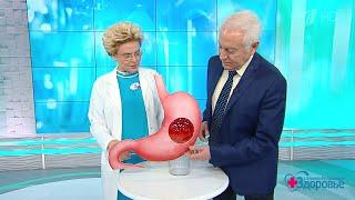 Лекарства для желудка: ингибиторы протонной помпы. Здоровье.  17.03.2019