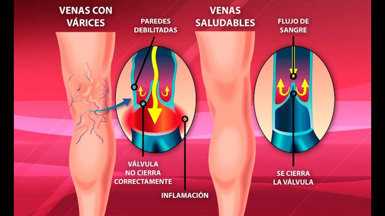 venas moradas en los testiculos
