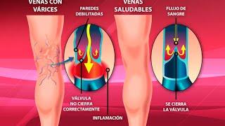 Cerca de varicosas la espinilla venas
