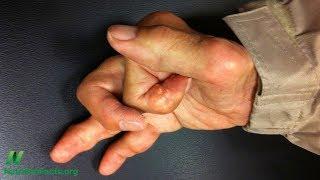 Kurkuma, kurkumin a osteoartróza