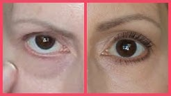 GET RID OF TEAR TROUGHS (UNDER EYE BAGS) & DARK CIRCLES!