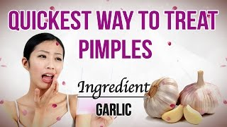 How to Remove Pimples From Face   Home Remedy For Pimples   How to Treat Pimples Naturally   Garlic