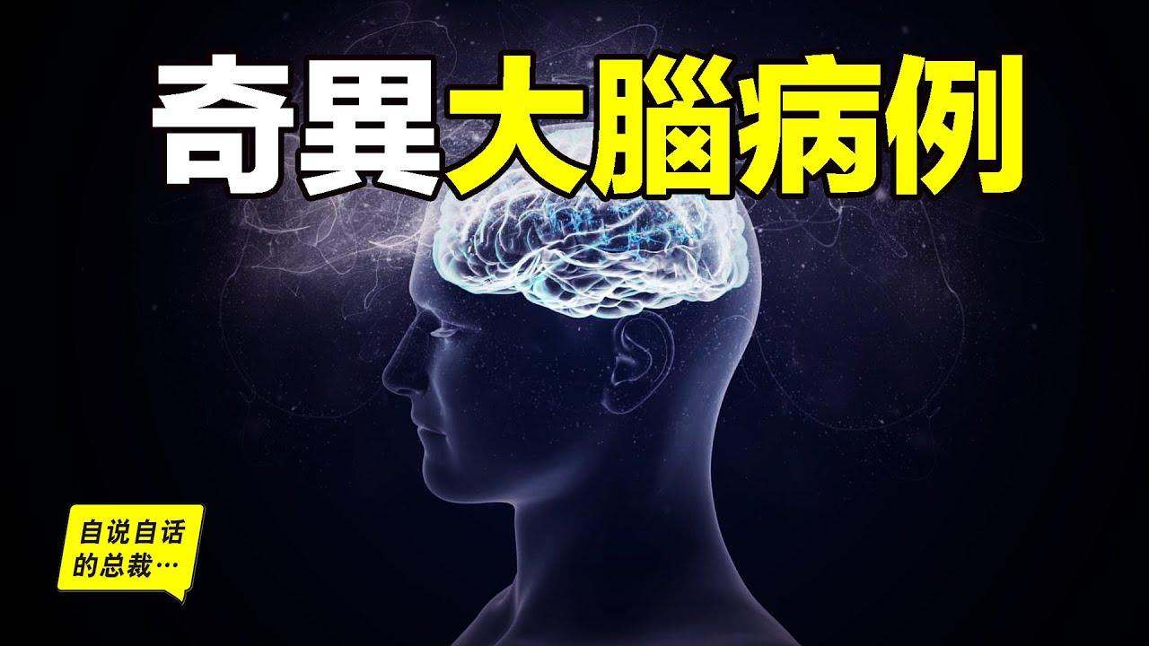 探訪腦中異世界:4個不可思議的真實大腦病例,發現大腦中的奇異世界……|自說自話的總裁