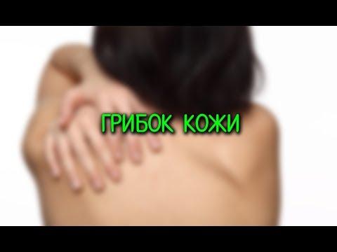 Грибок кожи (микоз): виды, как выглядит, фото, симптомы и лечение