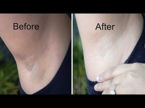Whiten Dark Underarms in 20 Minutes   Whitening Cream Bleach   Demonstration