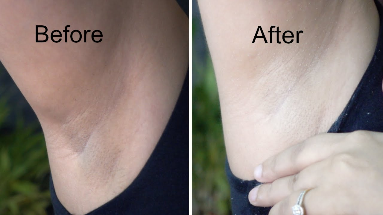 Natural Way To Bleach Arm Hair