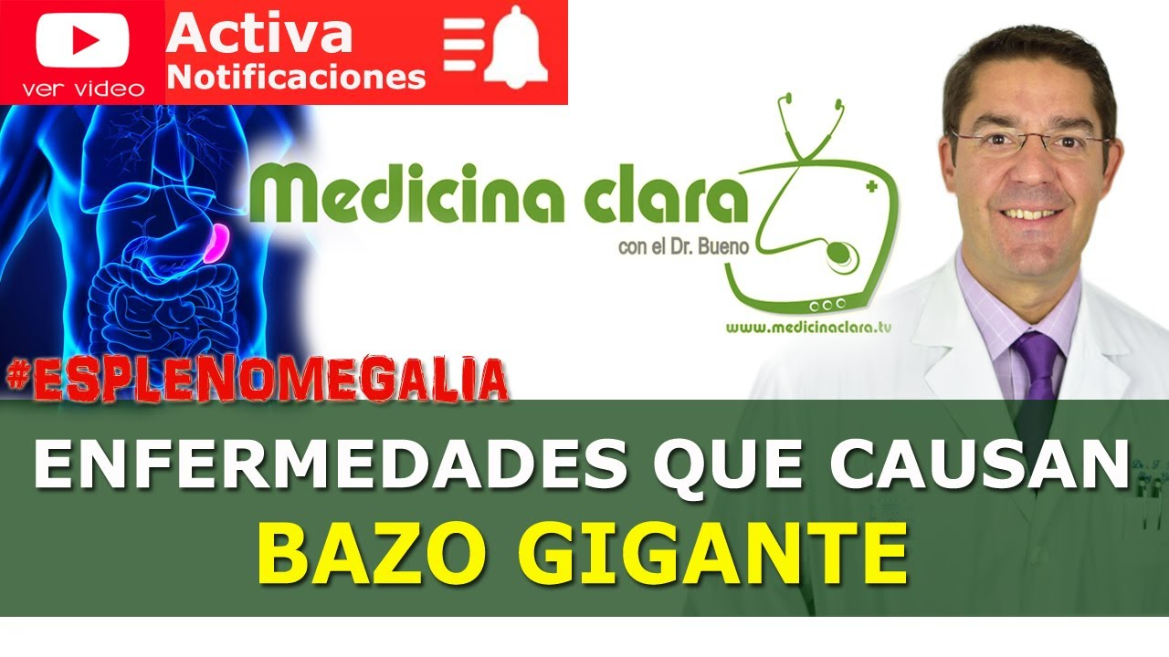 Esplenomegalia: Bazo gigante. ¿Qué enfermedades producen bazo grande?   Medicina Clara