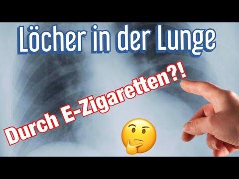Löcher in der lunge