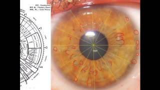 Iridology 101. What does it mean if you have orange/brown color in your eyes?