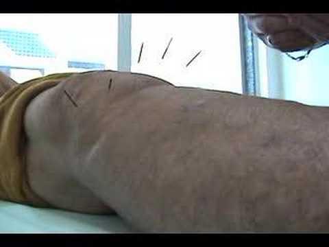 Acupuntura - Inserção de Agulhas em Joelho com Artrose