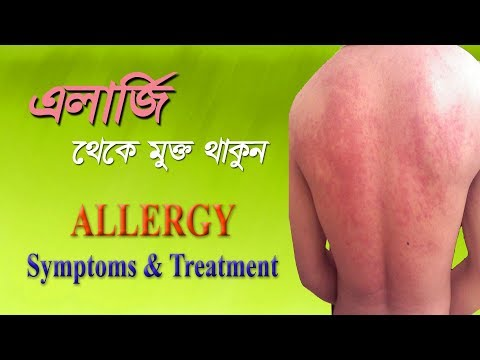Allergy – Symptoms, Diagnosis & Treatment | How To Get Rid Of Allergies In Bangla | Tutorial Video